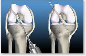 knee ligament reconstruction