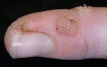 wart, finger