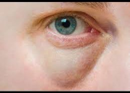 swelling under eyes