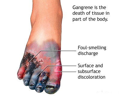 Treatment of Gangrene in Homeopathy | Homeopathy 360